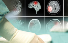 Experto Universitario en Instrumentación Quirúrgica en Neurocirugía (30 ECTS)